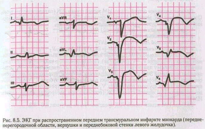 There is an obvious acute inferior stemi the inferior q 1502 x 552 png 466kb hqmeded-ecgblogspotcom